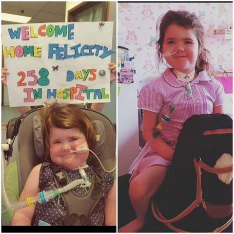 Felicity Watkins when she left hospital three years ago, and now, aged six. Picture: Frances Watkins.