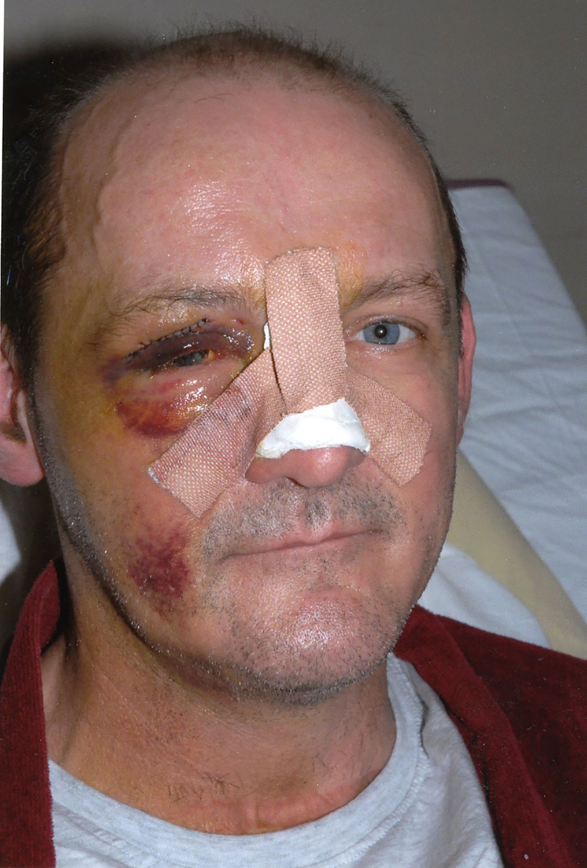 Judge slams 'unbelievable' charge against teen attacker who left victim without eye