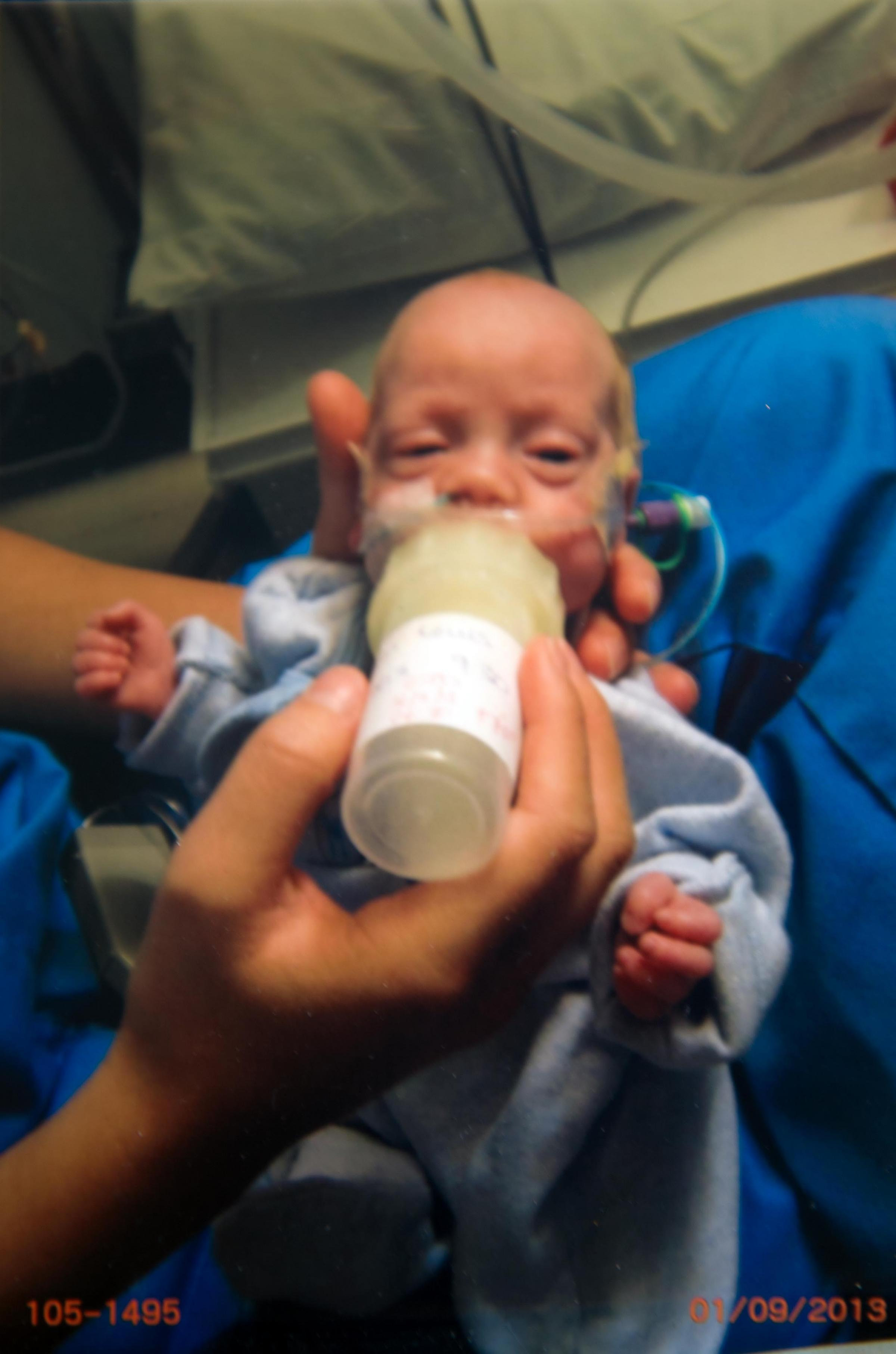 The transformation of this premature baby seems a real miracle